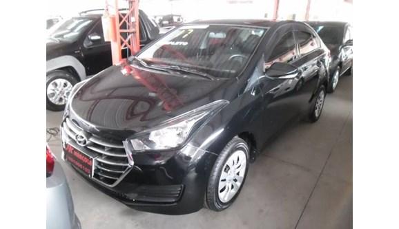 //www.autoline.com.br/carro/hyundai/hb20s-10-plus-turbo-flex-12v-4p-manual/2017/guaratingueta-sp/11366972